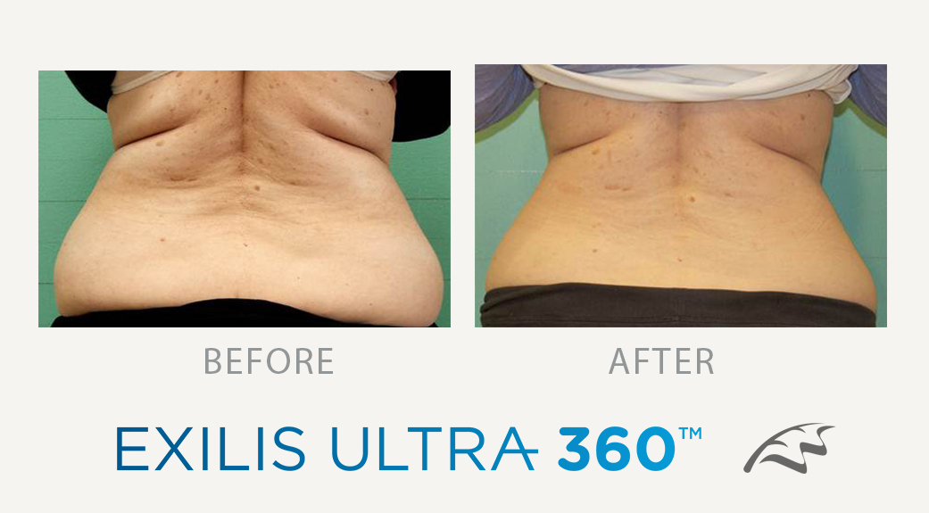 exilis ultra 360 before & After back fat