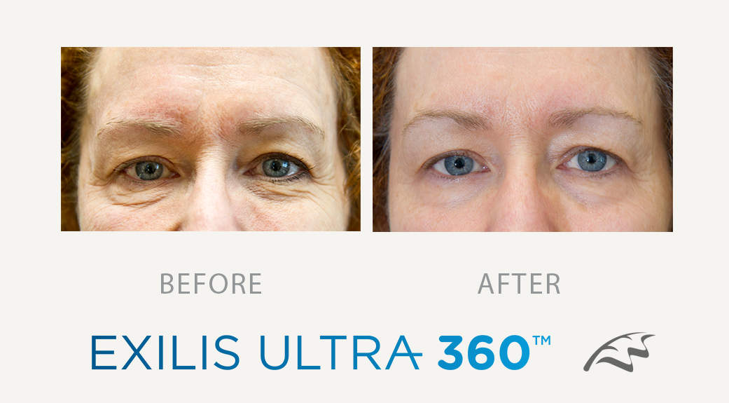 Exilis Before After eye bags