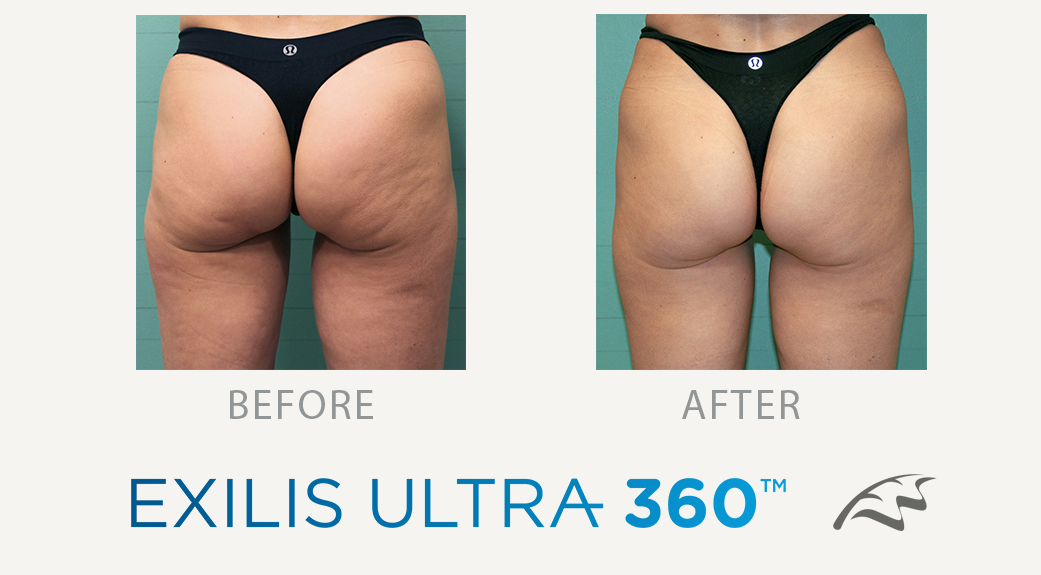 Exilis Ultra 360 before & after cellulite