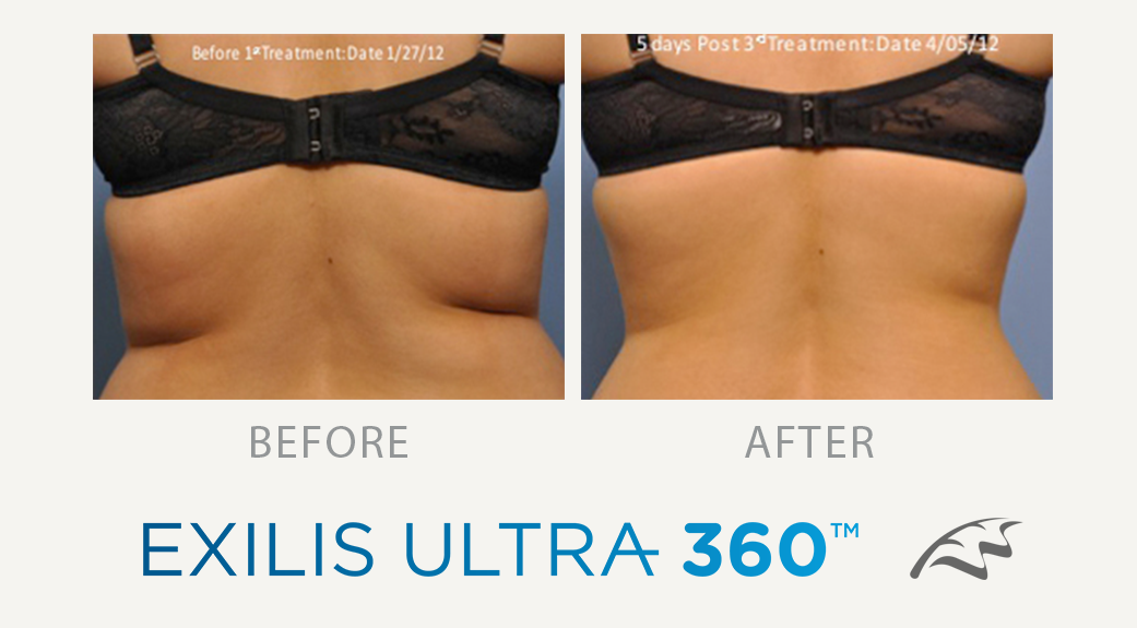 Exilis Ultra 360 Before After back fat