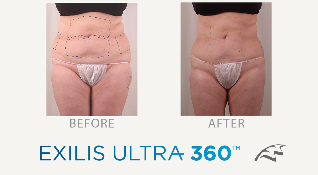 Exilis ultra 360 Before & After Wimbledon tummy belly