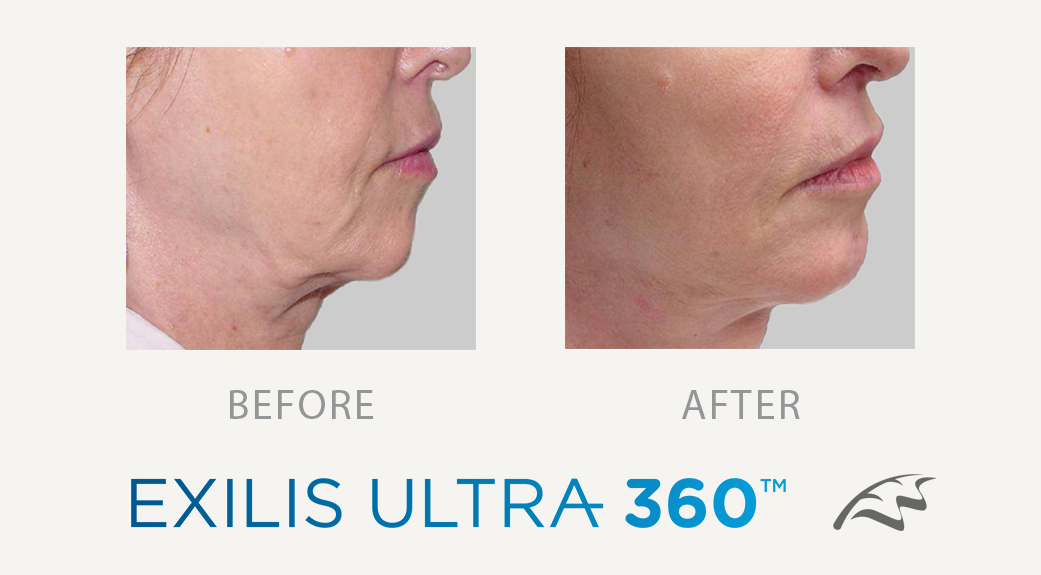 Exilis before & after - double chin