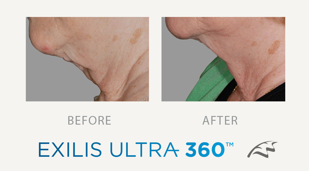 exilis ultra 360 before & After Jowels