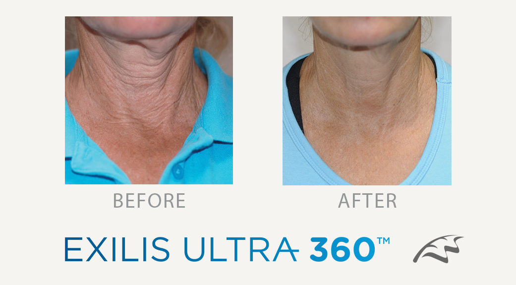 Exilis 360 Before & After Face Turkey Neck