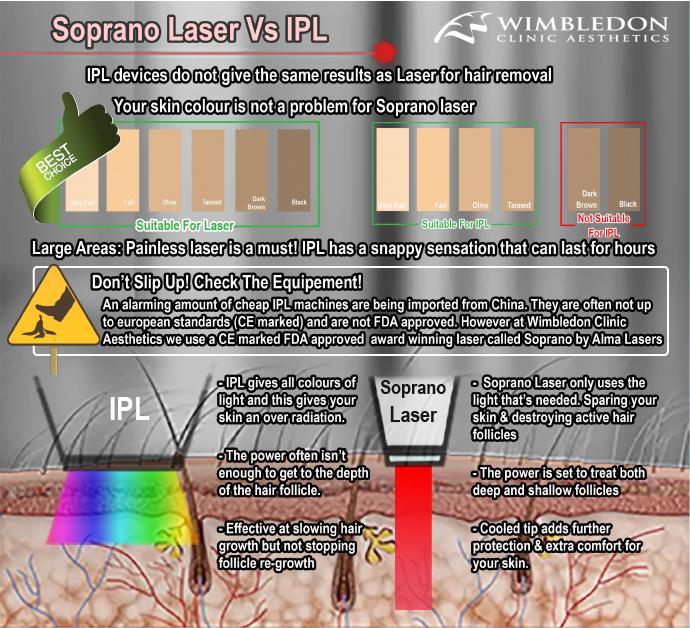Soprano Laser vs IPL hair removal
